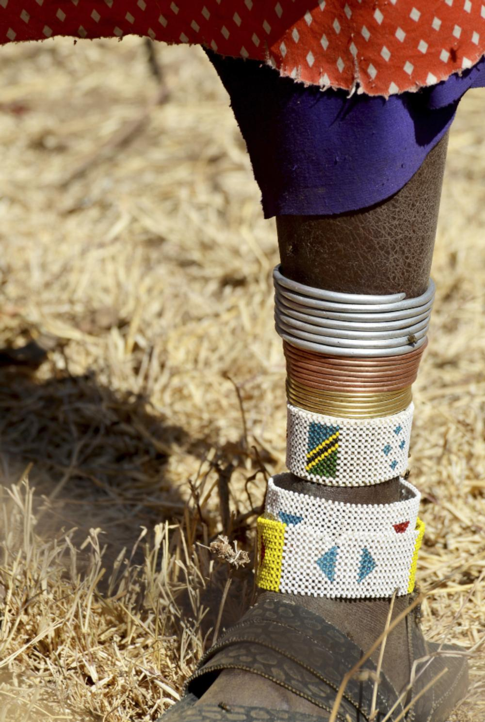 Tanzania native's leg with bands